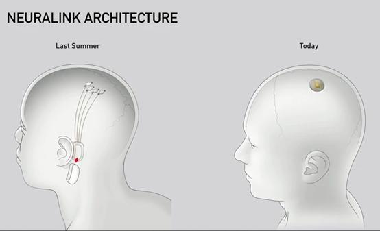 Architecture de la puce Neuralink